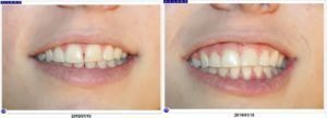 before-and-after-same-day-resin-veneers