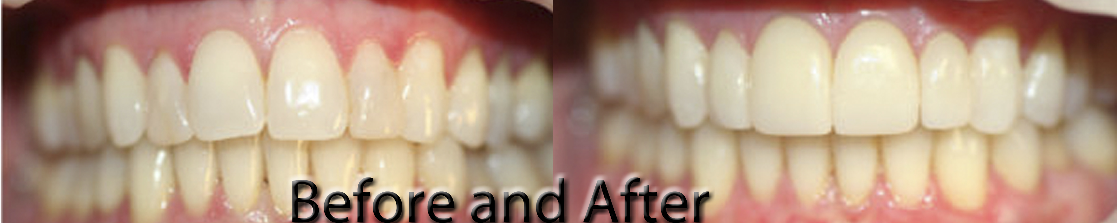 Bonding to Veneers